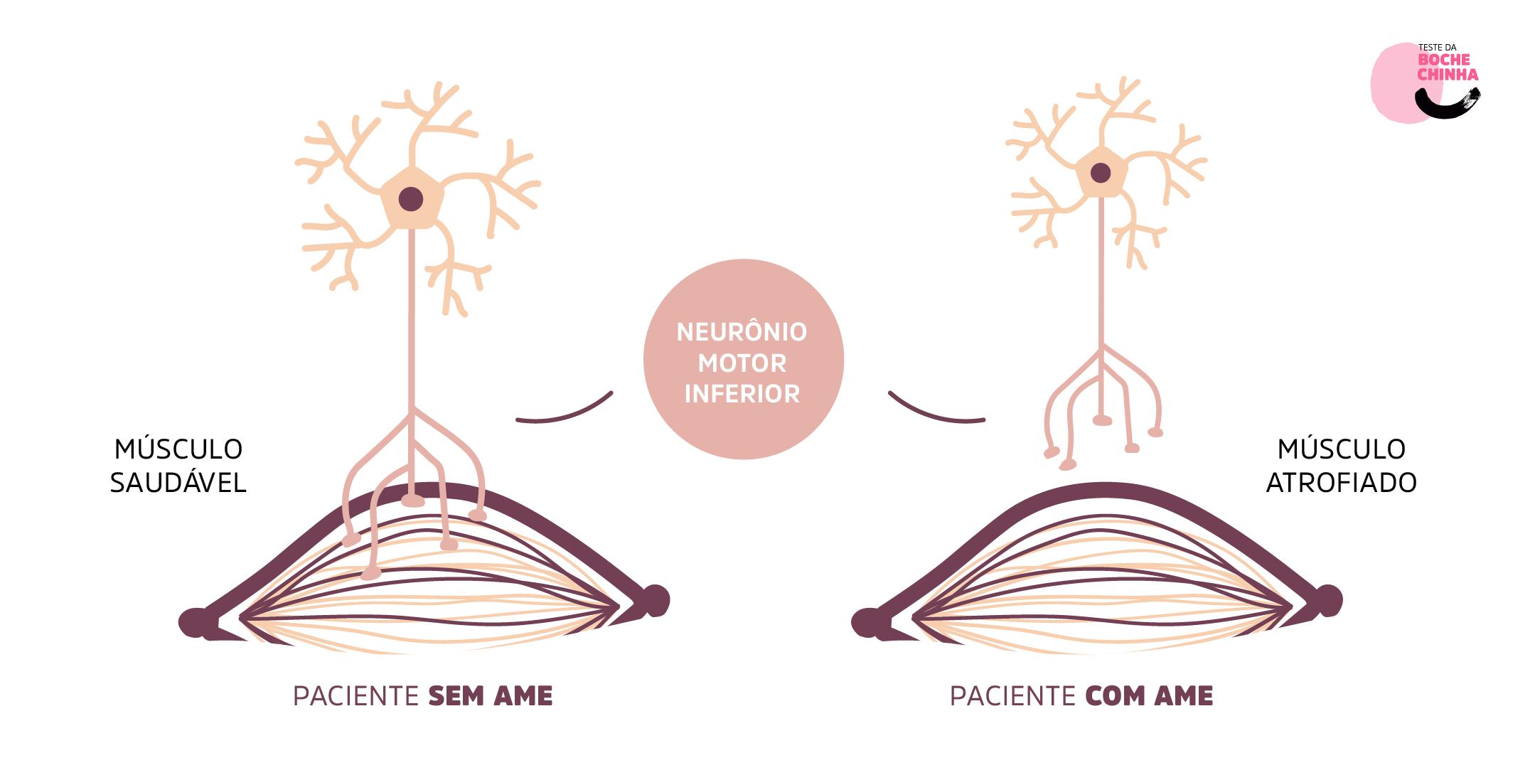 Figura 2. Ilustração representando a diferença entre o músculo de pessoas com AME 5q e em pessoas sem AME 5q. A falta de conexão do neurônio motor com o músculo causa fraqueza e atrofia progressiva.
