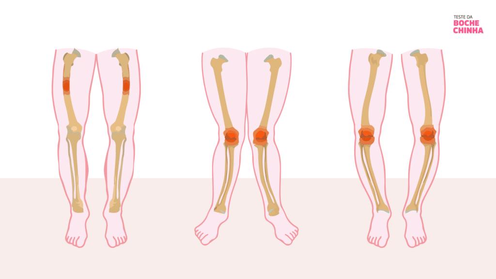 Sintomas Raquitismo Hipofosfatêmico. desenvolvimento de ossos frágeis, curvatura das pernas e outras deformidades ósseas XLHDay